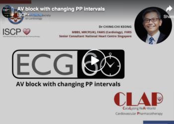 AV Block with Changing PP Intervals