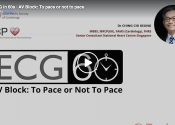 AV Block: To Pace or Not To Pace